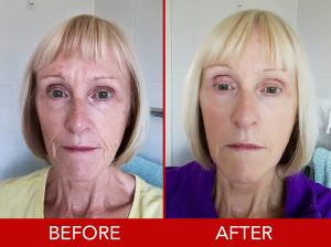 Wonderful Yoga Teacher Dorothy Jackson Started Face Exercises At The Age Of 62 And Achieved Amazing Results Just In 2 Months